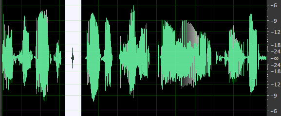 Dialogue Waveform Compressed & Normalised with Mouth Clicks